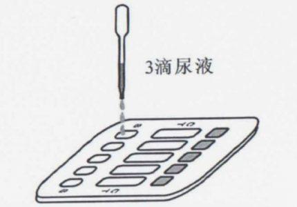 三合一尿检板使用示意图